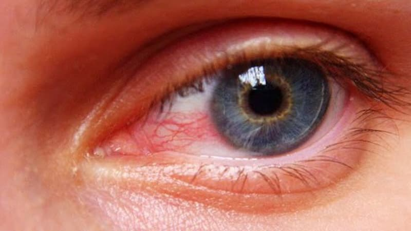 Tensão ocular